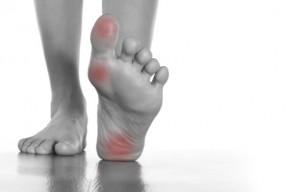 aching feet - 453065673
