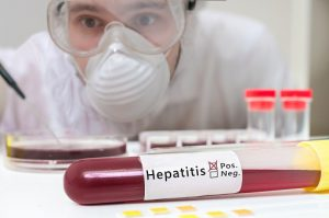 Test tube with blood for Hepatitis test