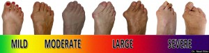 Bunion_Progression_Scale