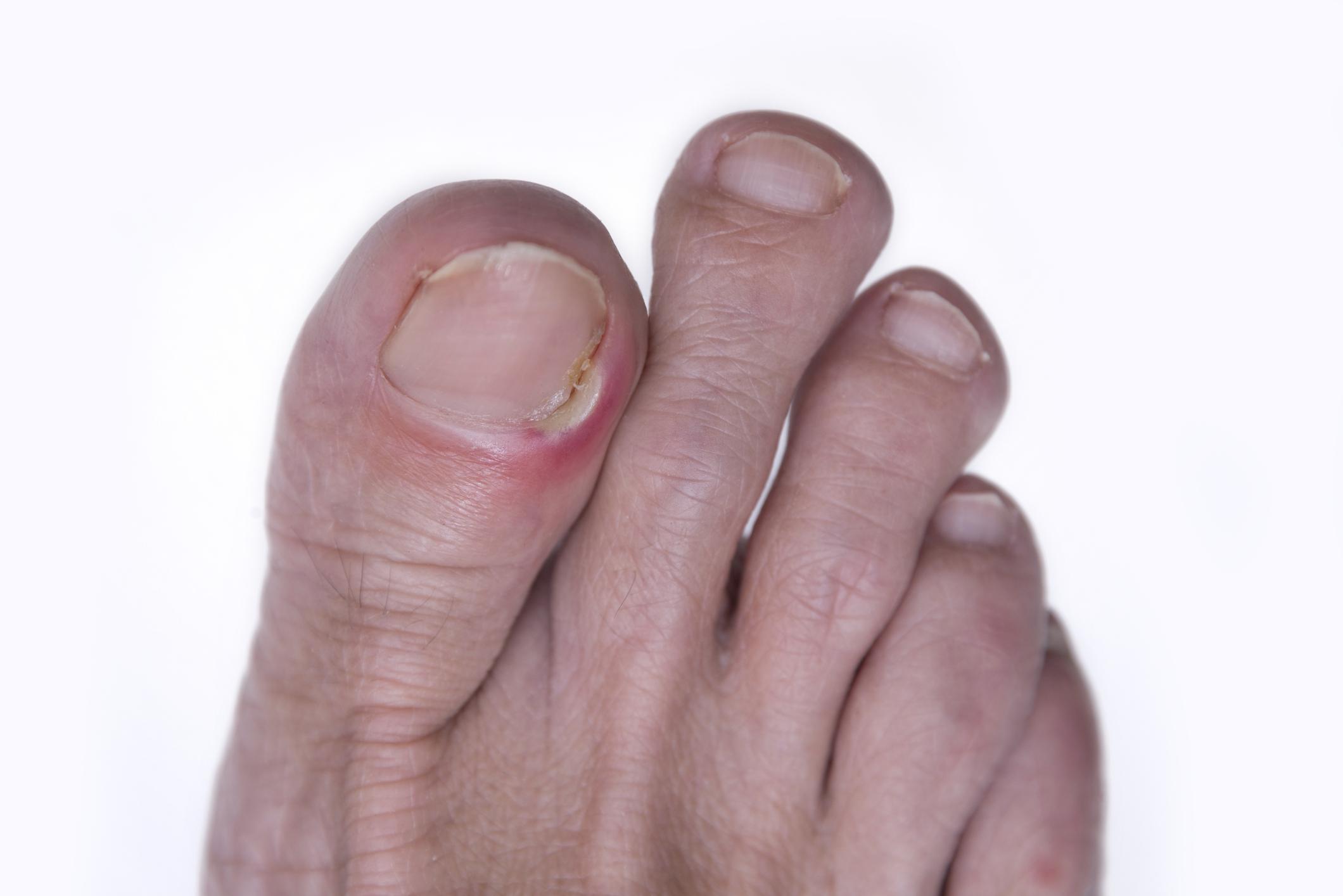 ingrown toe nail | Health Beat