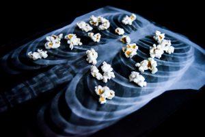 popcorn lung, pulmonary medicine, Jamaica Hospital, vaping, e-cigarettes, lungs